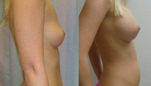 breast-augmentation-paciente-1-3-1024x740
