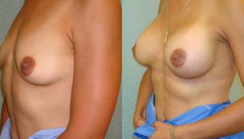 breast-augmentation-paciente-2-2-800x400 - copia