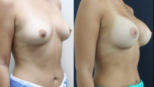 breast-augmentation-paciente-3-2-1024x708