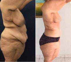 before and after body lift in colombia