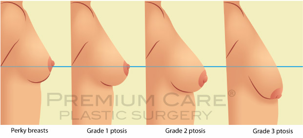 Breast Lift in Colombia - Premium Care Plastic Surgery