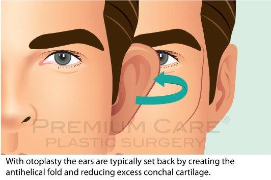 Ear Surgery - Premium Care Plastic Surgery