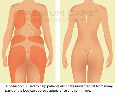 Liposuction in Colombia - Premium Care Plastic Surgery