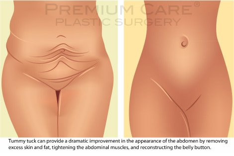 Tummy Tuck in Colombia - before and after