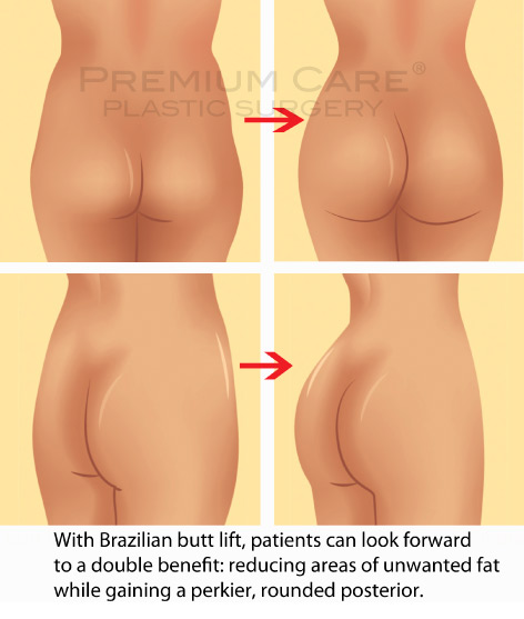 Buttock Augmentation in Colombia
