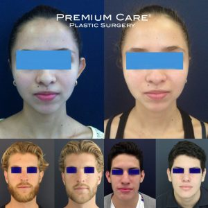 Ear Surgery in Colombia - Premium Care Plastic Surgery