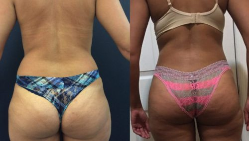 Before and After brazilian butt lift Colombia - Premium Care Plastic Surgery