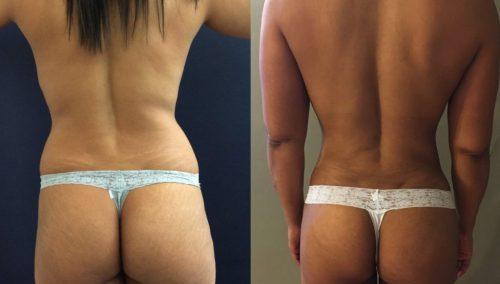 Brazilian Butt Lift gallery -Brazilian Butt Lift Cartagena Colombia - Premium Care Plastic Surgery