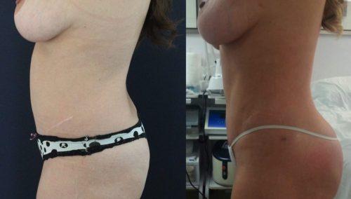Brazilian Butt Lift Cartagena Colombia - Premium Care Plastic Surgery