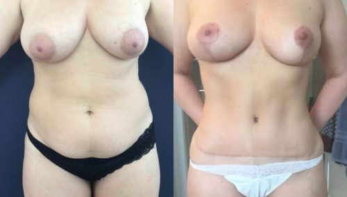 Breast Lift Colombia - Premium Care Plastic Surgery