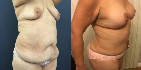 Breast Lift with Implants Colombia - Premium Care Plastic Surgery