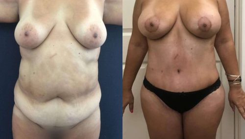 Breast Lift with Implants Colombia -Premium Care Plastic Surgery
