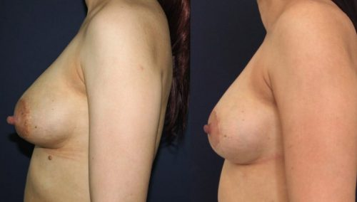 Before and after Breast Revision Colombia - Premium Care Plastic Surgery