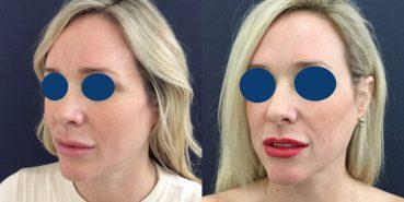 Facial Fat Grafting Colombia - Premium Care Plastic Surgery