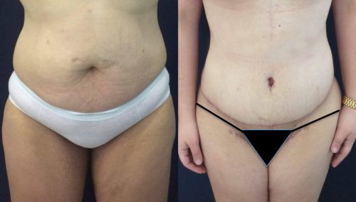 Before and after Thigh Lift Colombia - Premium Care Plastic Surgery