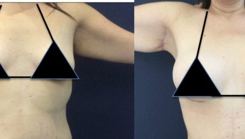 Arm lift gallery - Before and After Arm Lift Colombia - Premium Care Plastic Surgery