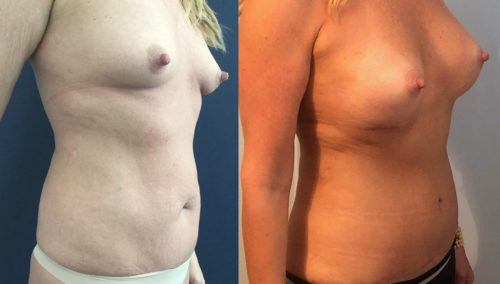 Breast Augmentation Colombia - Premium Care Plastic Surgery