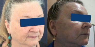 Facelift Colombia - Premium Care Plastic Surgery