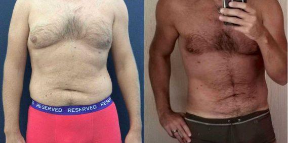 Liposuction Colombia - Premium Care Plastic Surgery