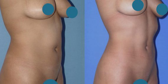 Before and After Liposuction Colombia - Premium Care Plastic Surgery