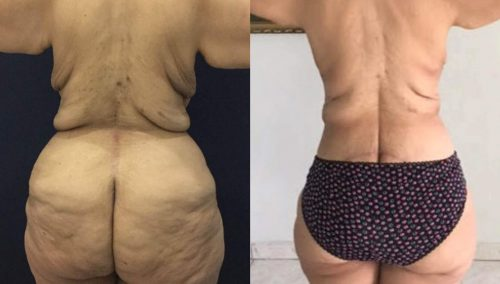 Before and After Posterior Body Lift Colombia - Premium Care Plastic Surgery