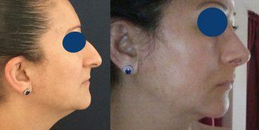 Rhinoplasty Colombia - Premium Care Plastic Surgery