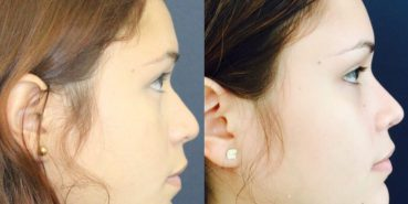 Rhinoplasty Colombia - Premium Care Plastic Surgery