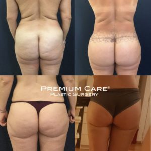 Before and After Body Lift in Colombia at Premium Care Plastic Surgery