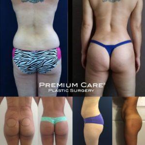 Buttock Augmentation in Colombia - Premium Care Plastic Surgery