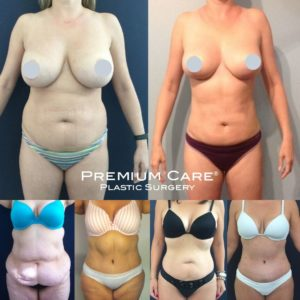 Mommy Makeover in Colombia at Premium Care Plastic Surgery