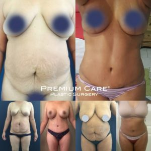 Tummy Tuck in Colombia at Premium Care Plastic Surgery