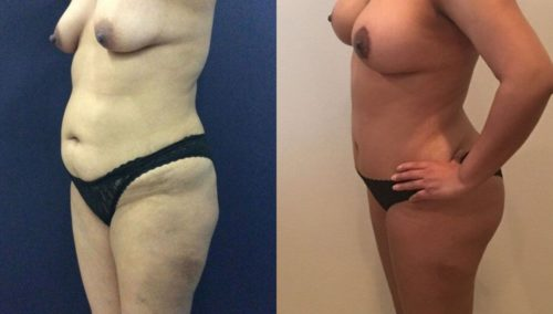 after weight loss colombia 136-2-min