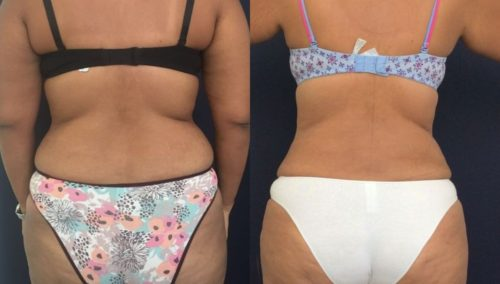 after weight loss colombia 154-4-min