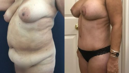 after weight loss colombia 171-2-min