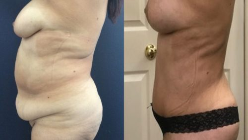 after weight loss colombia 171-3-min