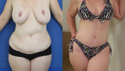 after weight loss colombia 18-1-min