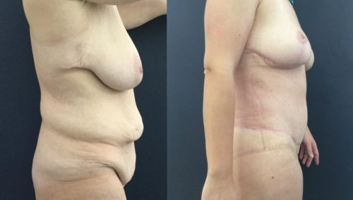 after weight loss colombia 226-5-min