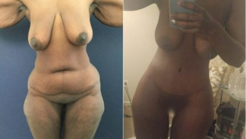 after weight loss colombia 298-1-min
