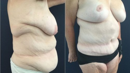 after weight loss colombia 322-3-min