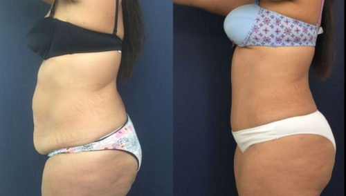 after weight loss colombia 41-3-min