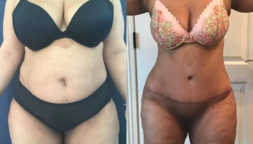 after weight loss colombia 80-1-min