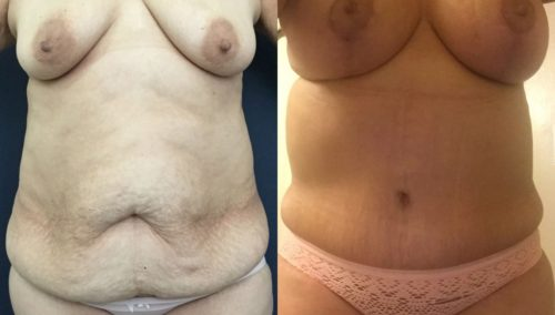 after weight loss colombia 85-1-min