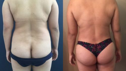 after weight loss colombia 87-4-min