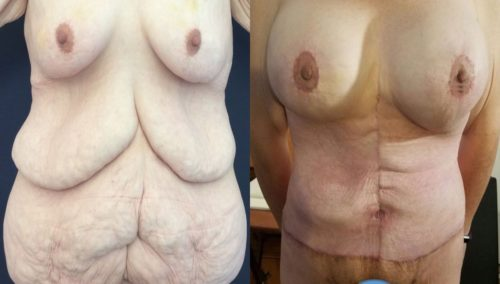 after weight loss colombia 94-1-min