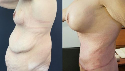 after weight loss colombia 94-3-min