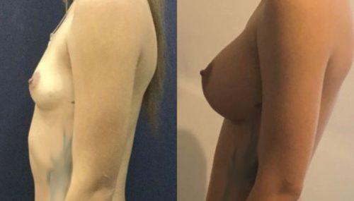 breast augmentation colombia 107-2-min