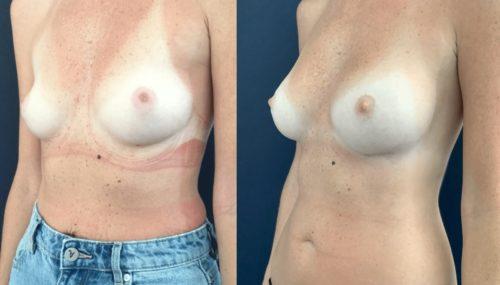 breast augmentation colombia 108-2-min
