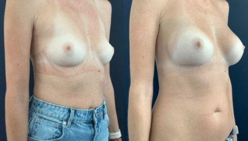 breast augmentation colombia 108-4-min