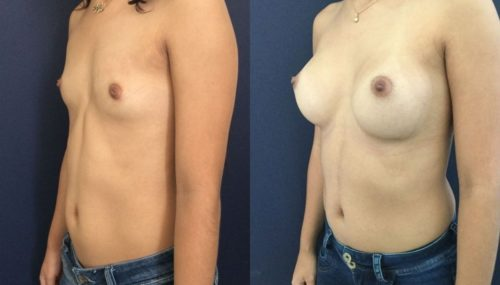 breast augmentation colombia 202-2-min