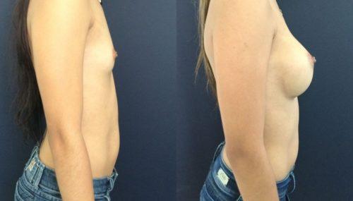 breast augmentation colombia 202-5-min